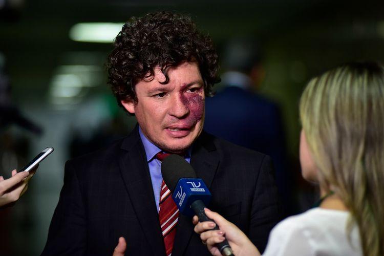 Dep. Reginaldo Lopes (PT-MG) concede entrevista