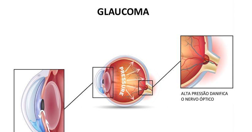 Diagnóstico do glaucoma